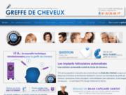 screenshot http://www.greffecheveuxpascher.fr/ microgreffe de cheveux pas cher