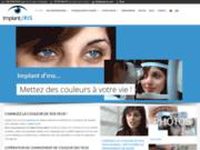 image du site https://www.implant-iris.com/