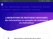 screenshot http://www.laboratoire-odic.com laboratoire de prothese dentaire complète, partielle, prothèse dentaire sur implants
