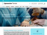 Liposuccion Tunisie : Lipoaspiration ventre et cuisses