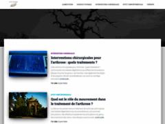 Consulter la fiche de Arthrose rhumatisme