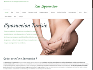 faire-une-liposuccion-en-tunisie-zen-liposuccion