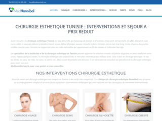 operation-esthetique-tunisie-med-hannibal