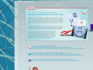 Epistaxis sur saignementdenez.com sur http://www.saignementdenez.com