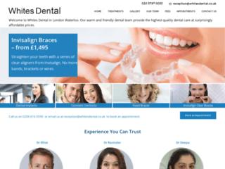 Enlighten Teeth Whitening in Waterloo SE1   Home & InSurgery