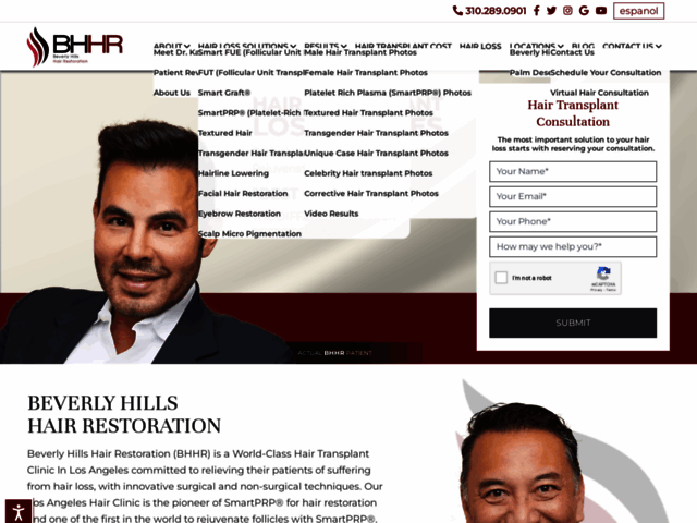 Replacement of hair in Beverly Hills