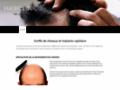 Détails : Centre de greffe de cheveux