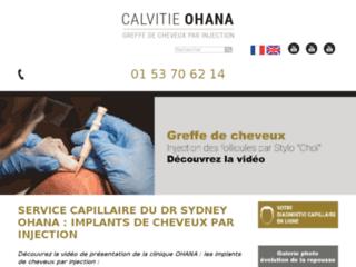 Détails : Chirurgie capillaire à paris, Dr Aziza
