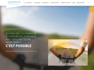 cataractejepassealacte.fr, guide sur la cataracte