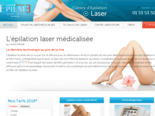 epilation laser