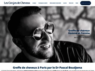 Spécialiste de la greffe des cheveux à Paris