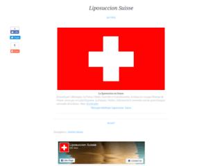Liposuccion en Suisse