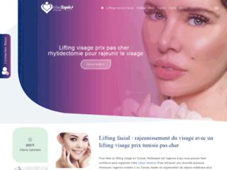 Détails : rhytidectomie pour rajeunir le visage