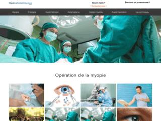 Informations et conseils sur l'opération des yeux