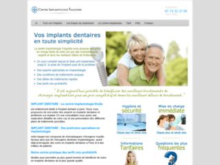 Détails : Implant dentaire