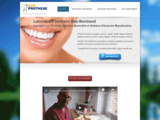 Détails : Sun Prothese : orthèses avancée mandibulaire
