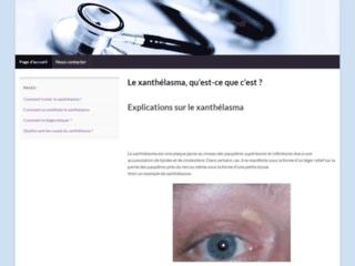 Détails : Xanthelasma : site officiel de cette maladie